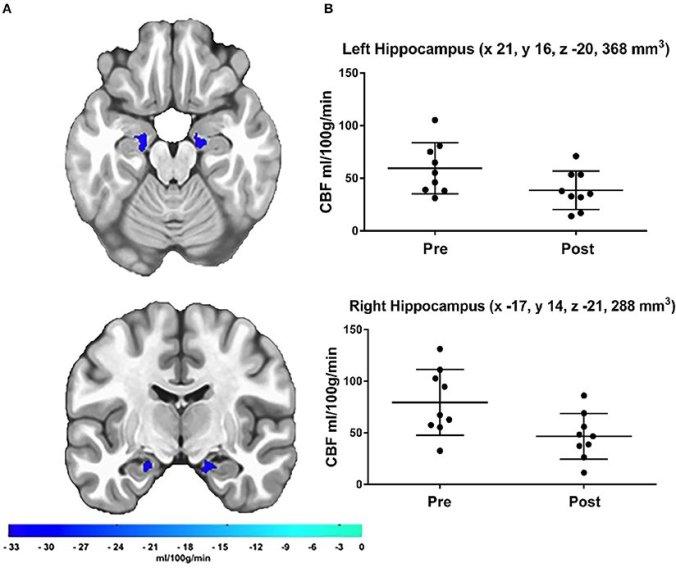 bigthink-running-hippocampus3